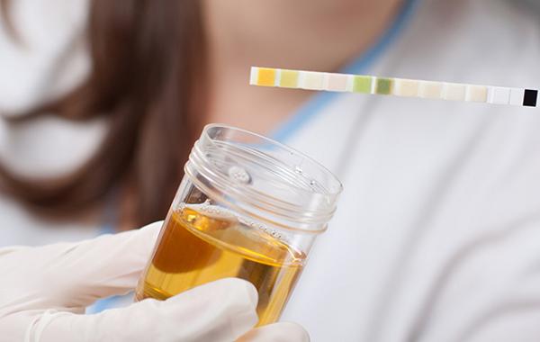 Cattivo odore delle urine e colorazione anomala possibili cause